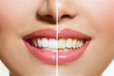 جلوگیری از زرد شدن دندان ها و وسایل سفید کننده